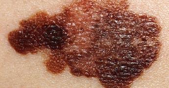melanoma-fi