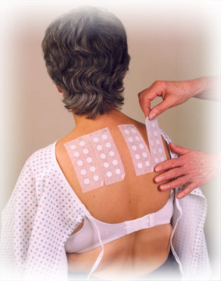 Patch Testing For Contact Dermatitis By A World Specialist ...