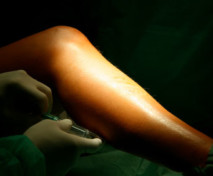 Sclerotherapy - Treatment for Unwanted Veins