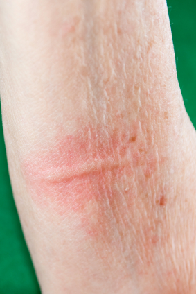 hives Latest Info On Treatment For Hives When Idiopathic